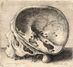 Skull with Top Removed by Leonardo DaVinci
